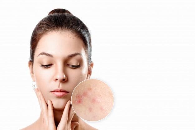 acne e alimentazione